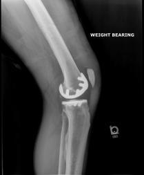 After - left knee